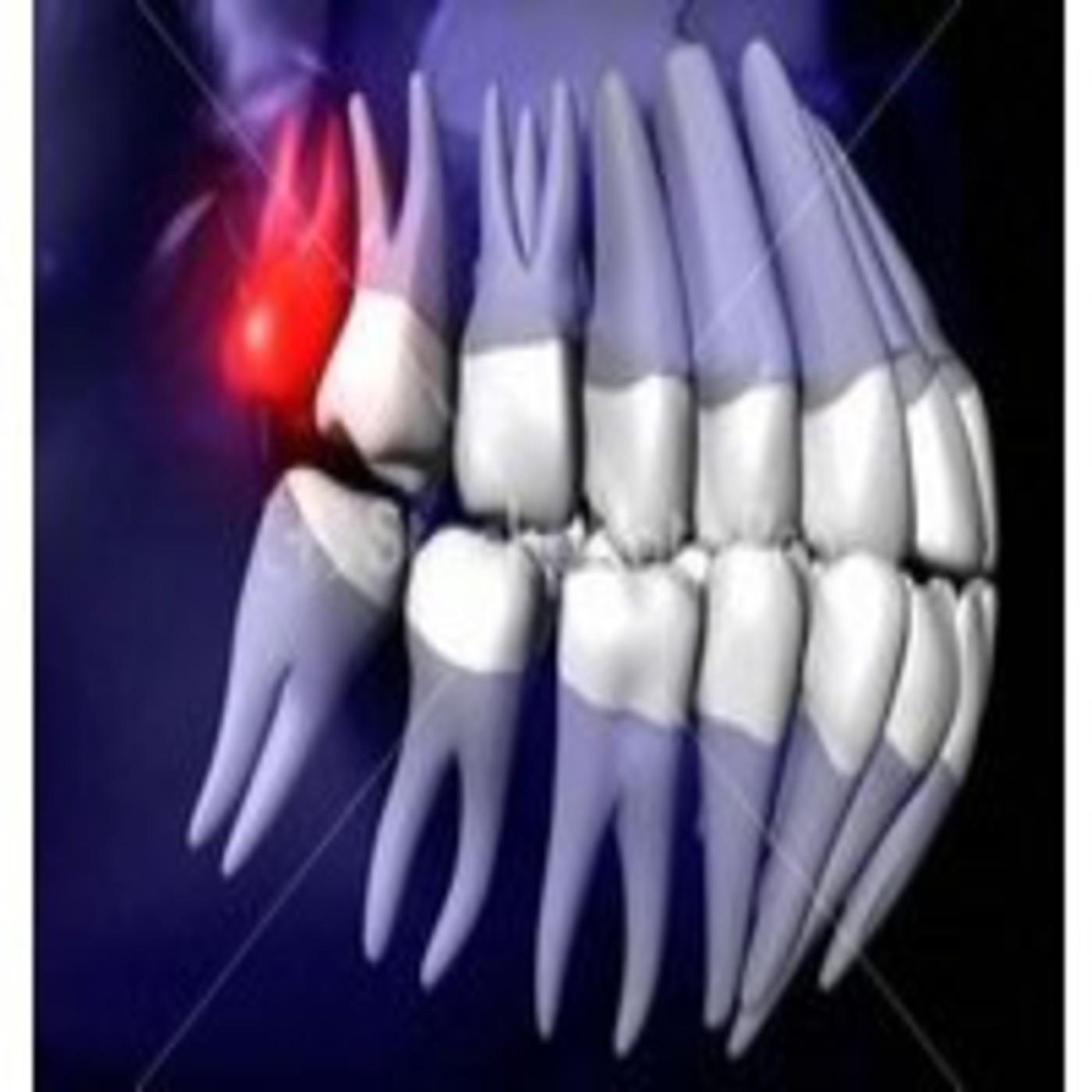 2.2.8 Morfología pulpar del tercer molar superior en Unidad 2 ...