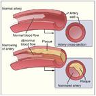 Colesterol, el malo de la película