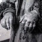 NdG 49 UNIDAD 731, Infierno Japonés en Manchuria