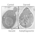La Brújula de la Ciencia s06e07: Nobel de Medicina 2016 para el mecanismo de la autofagia celular