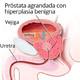 HBP Hiperplasia Benigna de Próstata.