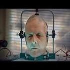 El primer transplante de cabeza -