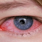 Sequedad, irritación de ojos con homeopatía y biorresonancia