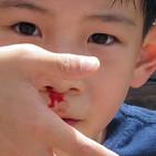 CONSEJOS DE FAMILIA: El sangrado nasal