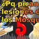 #29 - ¿Porque pican las lesiones de los mosquitos?