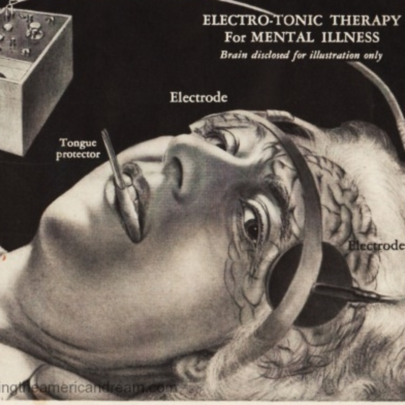El electroshock