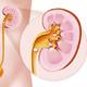 Litiasis urinarias by Gerard Capellas