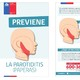 Paperas: señales de la enfermedad y medidas de prevención